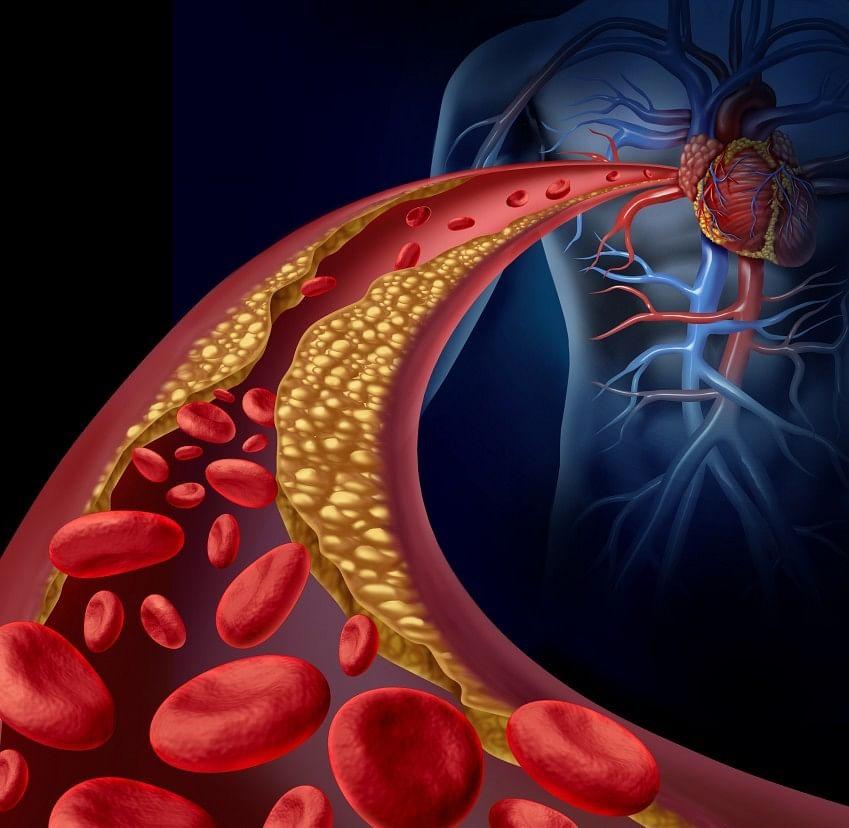 दिल के लिए खतरे की घंटी है एथेरोस्क्लेरोसिस, मर्ज को न करें नजरअंदाज...