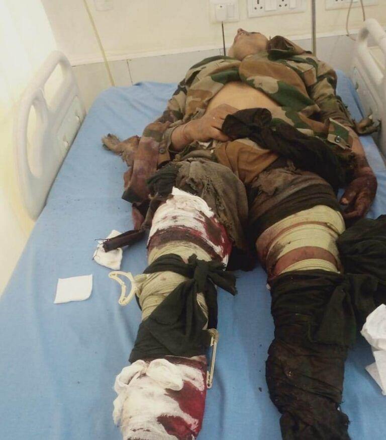 मालकानगिरि में  लैंडमाइन विस्फोट में बीएसएफ जवान घायल