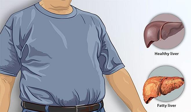 फैटी लिवर के मरीजों को क्या खाना चाहिए और क्या नहीं, जानिए विस्तार से