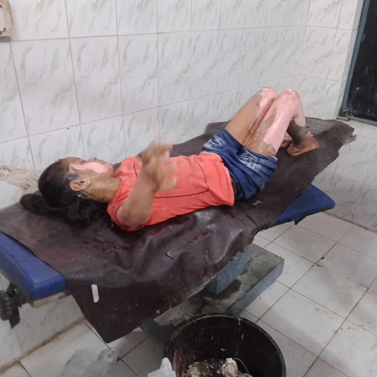 रसोई गैस सिलेंडर विस्फोट से चार बच्चे झुलसे, सदर अस्पताल में भर्ती