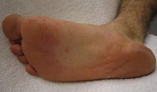 पैरों-में-होता-है-अक्सर-दर्द-तो-इन-तरीकों-का-करें-इस्तेमाल-जल्द-मिलेगा-आराम