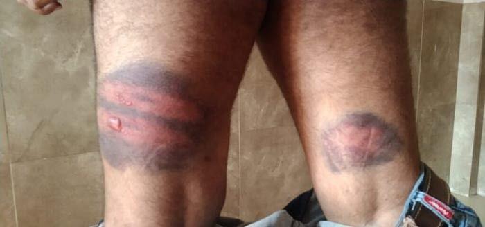 दंतेवाड़ा : कोविड ड्यूटी में तैनात शिक्षक को पुलिस ने पीटा