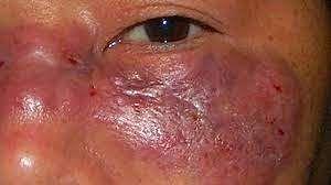 गुजरात में म्यूकोरमाइकोसिस संक्रमण से अब तक 35 की मौत, कई लोगों को गंवानी पड़ी आंख