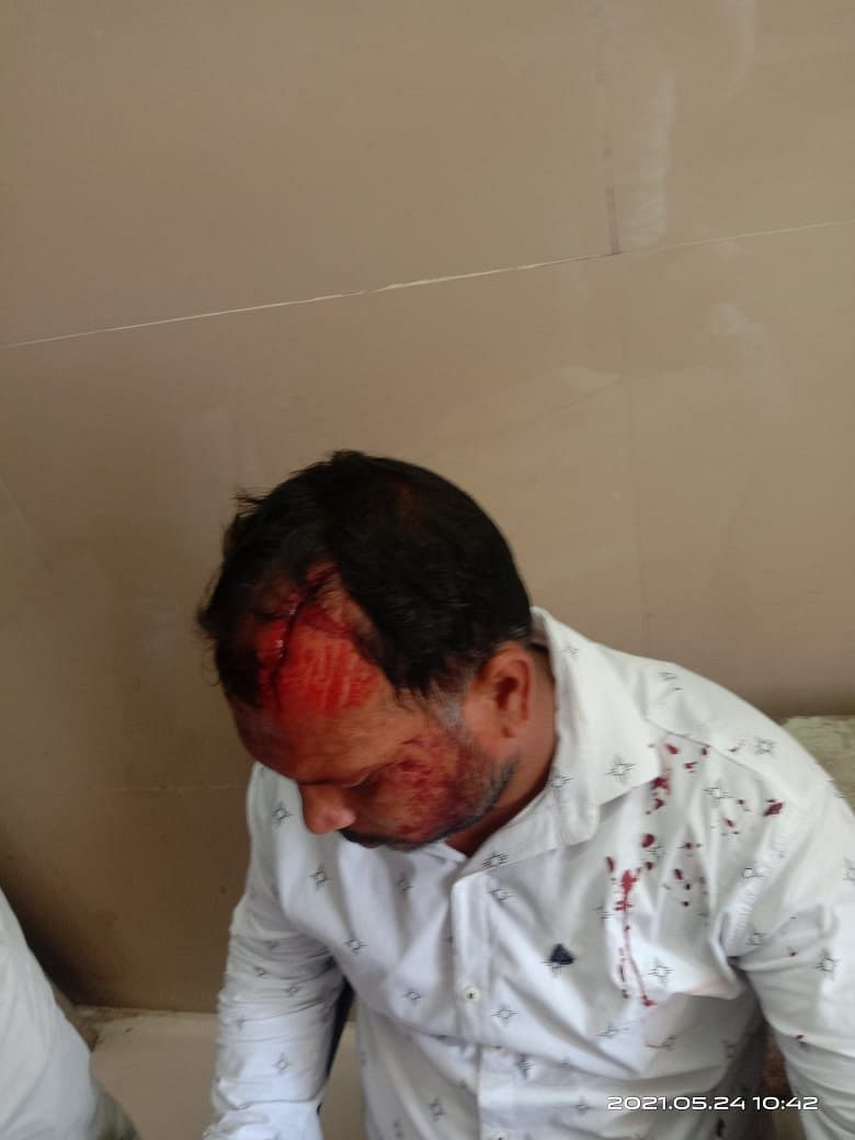 अपडेट: नागदा के पास मालीखेड़ी गांव में टीके लगाने पहुंची टीम पर हमला, एक गंभीर घायल