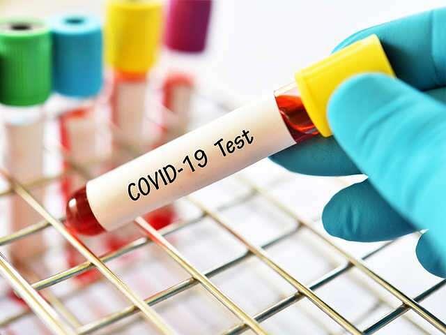 दुर्ग, भिलाई चरौदा एवं रिसाली नगर निगम क्षेत्र में प्रतिदिन 24 घंटे होगा कोरोना टेस्ट