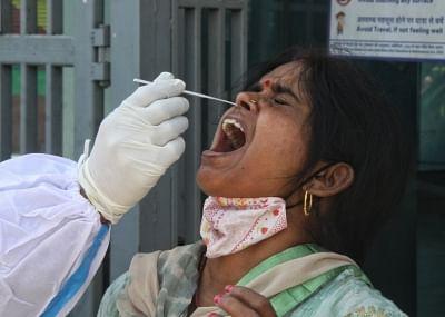 यूपी में कोविड मामलों में आई गिरावट