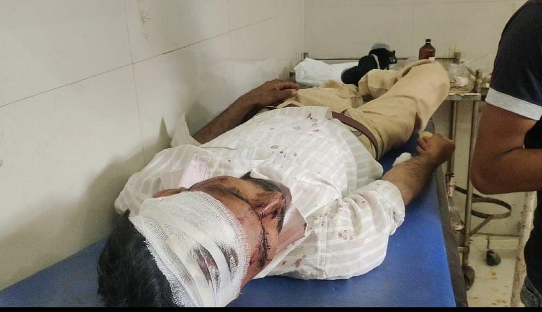 चुनावी रंजिश में दो पक्षों में हुई जमकर मारपीट, दो लोग घायल