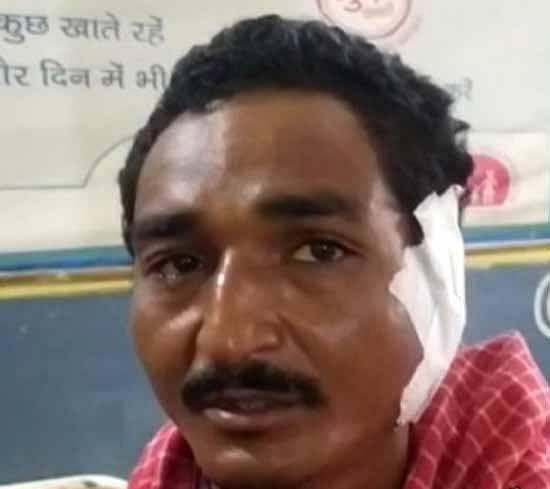 कांकेर : आपसी विवाद में भतीजे ने चाचा का कान काटकर अलग कर दिया