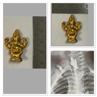 कर्नाटक में 3 साल के बच्चे ने निगली भगवान गणेश की मूर्ति, जिंदा बचा लिया गया