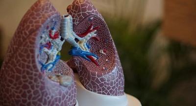 फेफड़े सामान्य रूप से खराब होने पर भी दिल के दौरे से मौत की आशंका