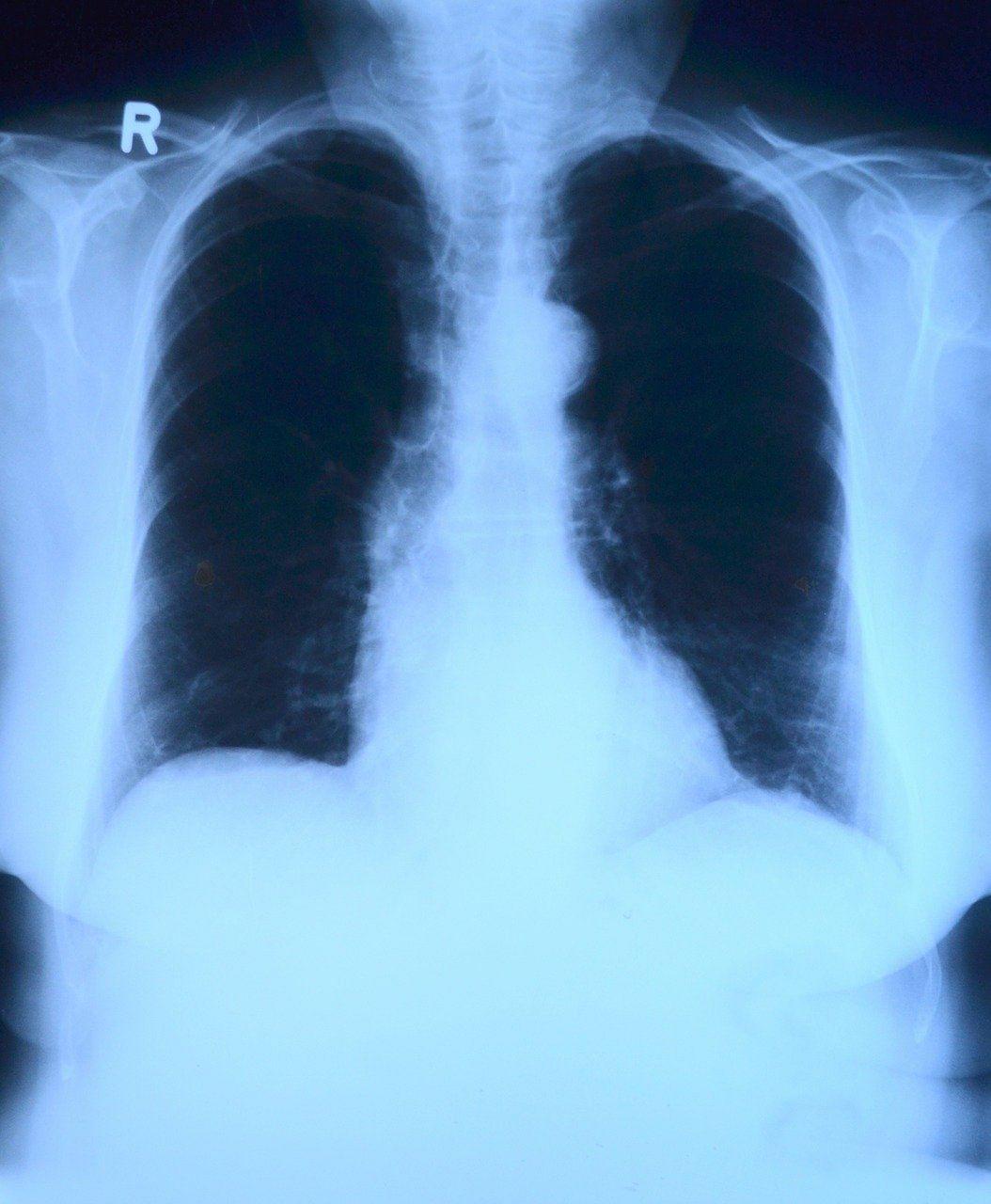 छाती का एक्स-रे टेस्ट - Chest X Ray in Hindi