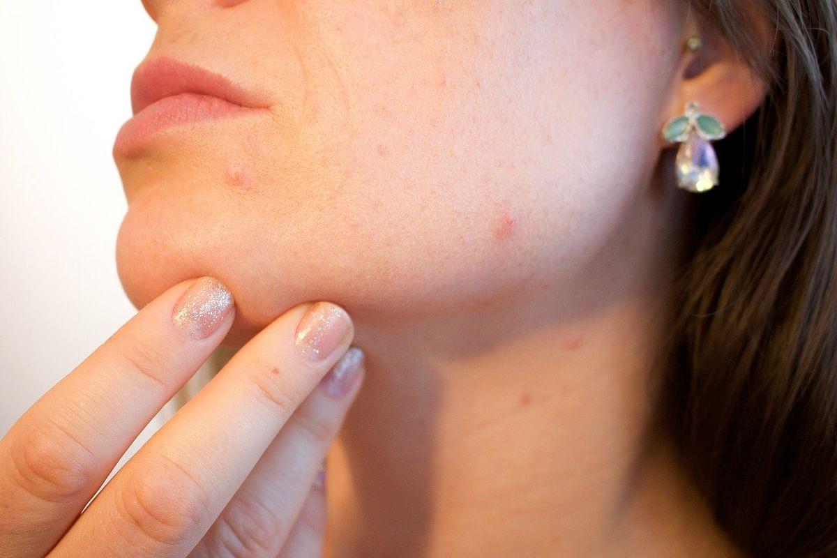 चेहरे के दाग धब्बे हटाने के घरेलू उपाय - Home remedies for dark spots and blemishes on face in Hindi