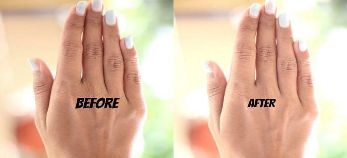 गर्मियों में सरल तरीकों से हाथों को ऐसे बचाएं