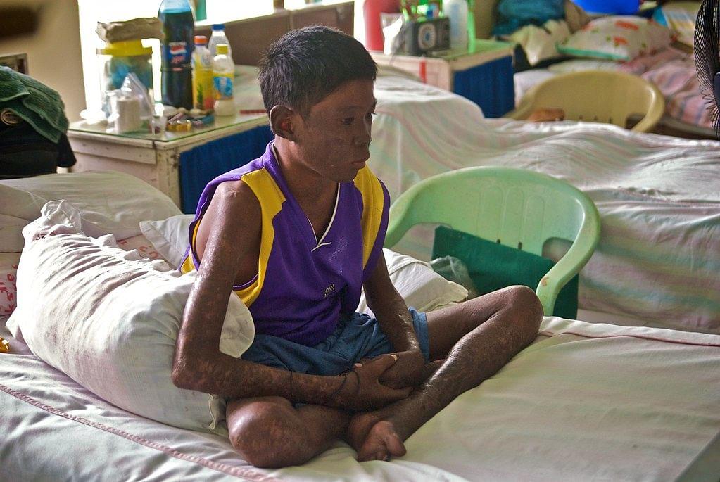 कुष्ठ रोग - Leprosy in Hindi