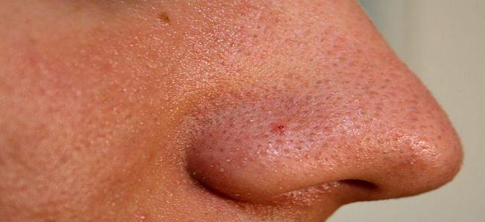 नाक के नीचे काले धब्बों को दूर करने का इलाज क्या है?