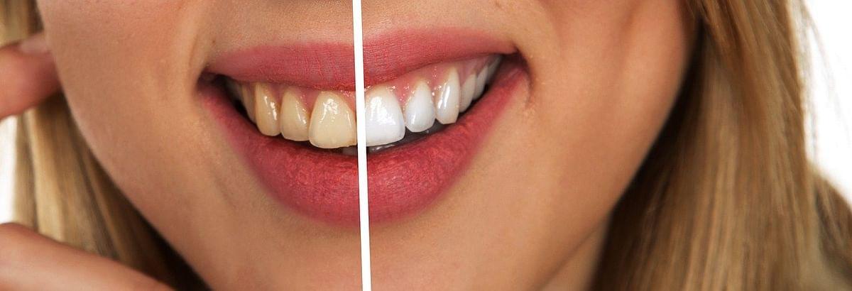 पीले दांत - Yellow teeth in Hindi