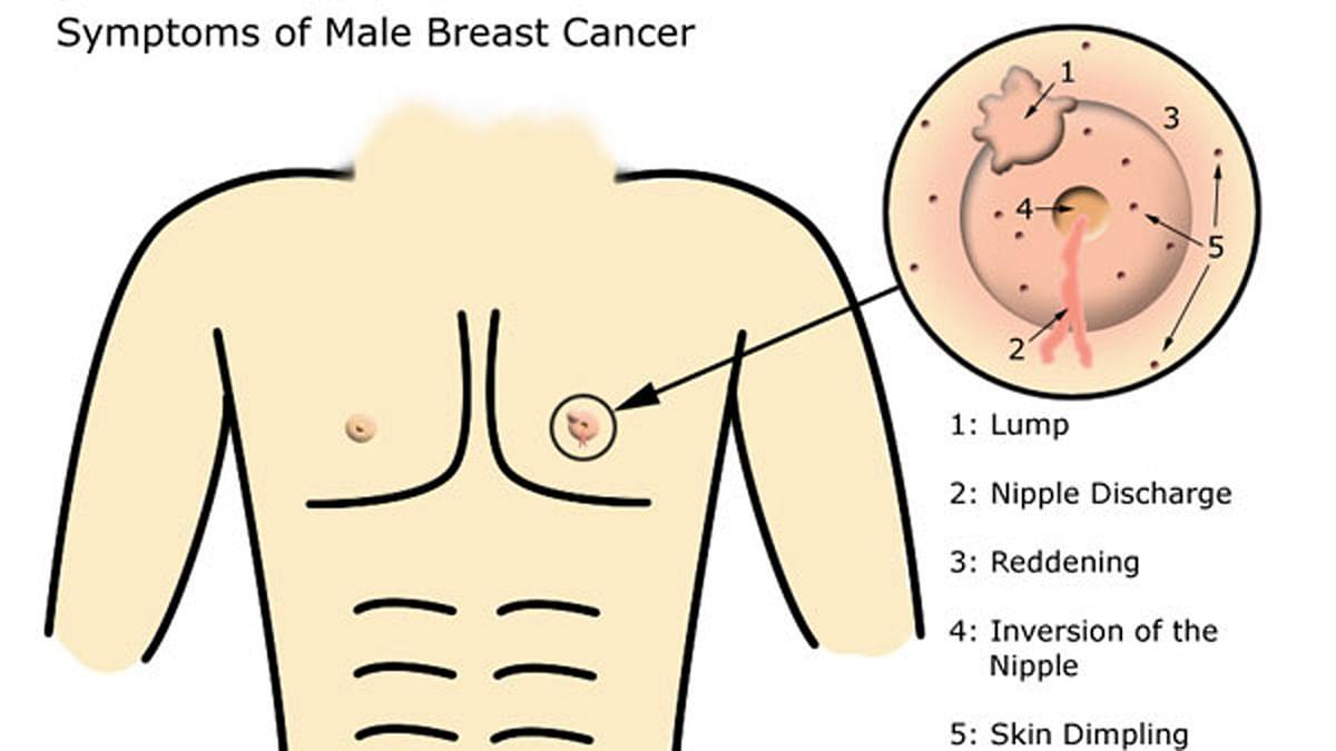 पुरूषों को भी होता है ब्रेस्ट कैंसर, क्या हैं लक्षण ?