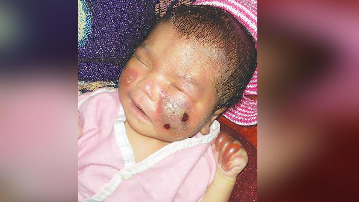 चिकित्सा विभाग की लापरवाही से बच्चे की जान पर बनी, नवजात को जलाया
