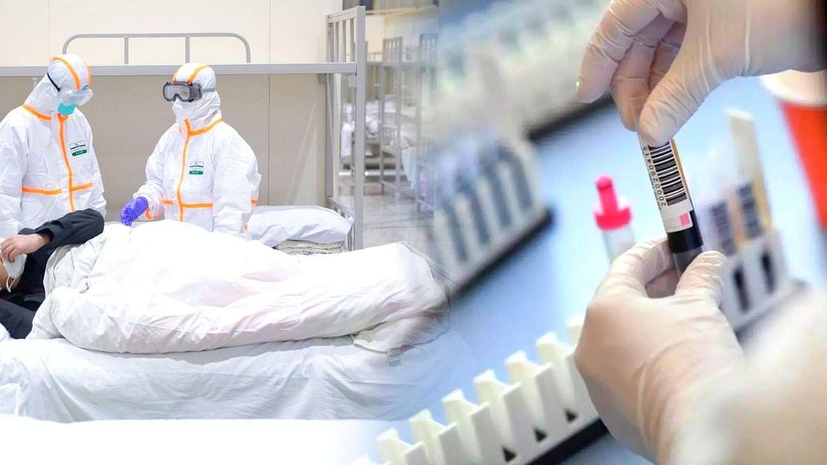 भोपाल कोरोना अपडेट: संक्रमण की रफ्तार फिर हुई तेज, मिले 238 नए मरीज
