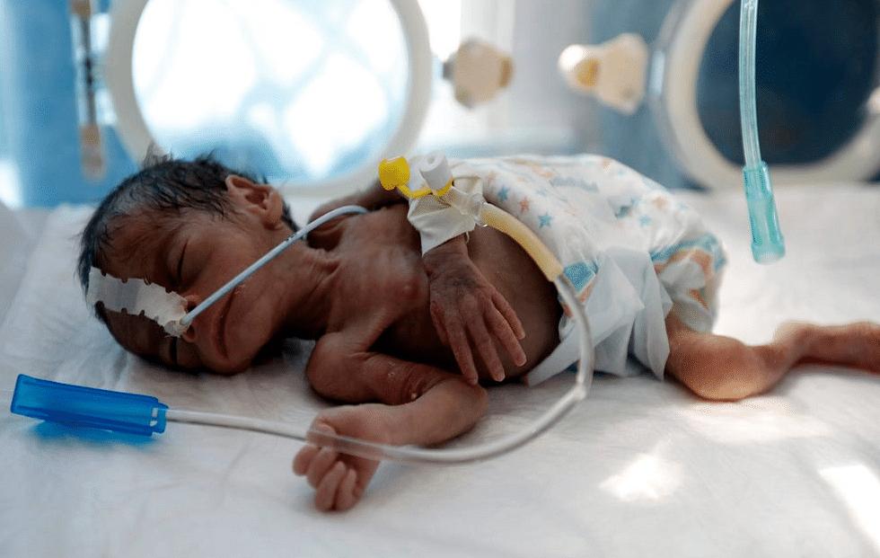 अस्पताल में लगी आग में 10 बच्चों की मौत का दोषी कौन ?