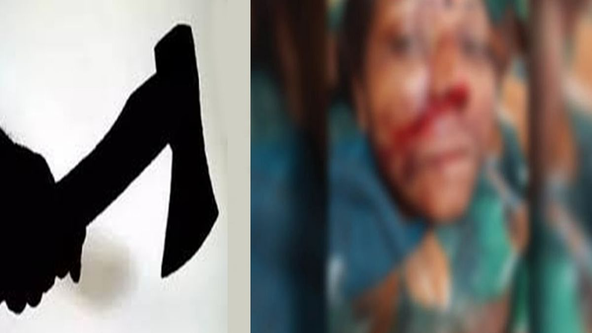 बैतूल में हैवानियत: पत्नी पर पति ने किए कुल्हाड़ी से ताबड़तोड़ हमले,काटी अंगुलिया
