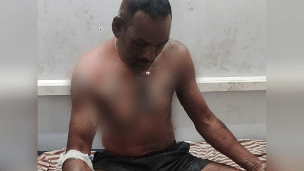 सागर: देर रात फरियादी युवक को आरोपी ने लगाई आग, अस्पताल में मचा हड़कंप