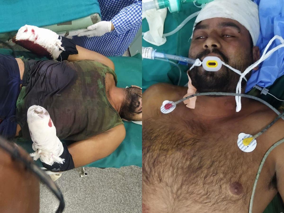 Hoshangabad : पुरानी रंजिश के चलते युवक के दोनों हाथ काटे, आरोपी फरार