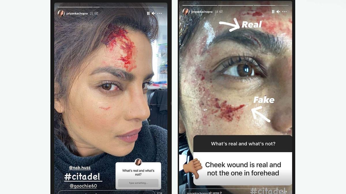 'सिटाडेल' की शूटिंग के दौरान घायल हुईं प्रियंका चोपड़ा