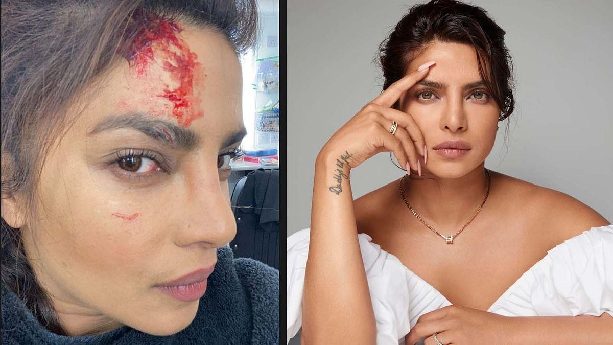 'सिटाडेल' की शूटिंग के दौरान घायल हुईं प्रियंका चोपड़ा, दिखाए रियल और फेक जख्म