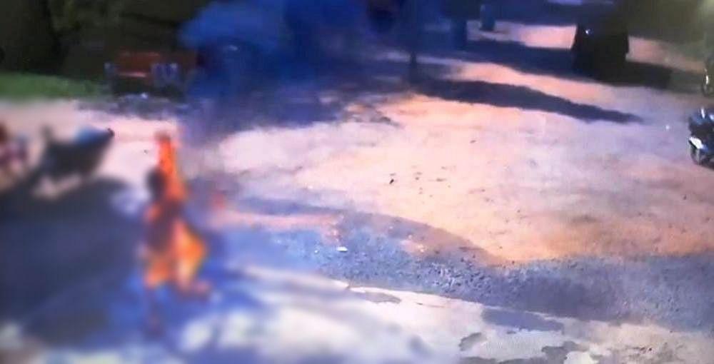 Anuppur : बदले की भावना से खुद को लगाई आग, पुलिस कर रही जांच