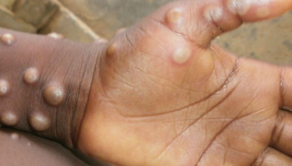 कोरोनानंतर आता देशात Monkeypox चा धोका; जाणून घ्या लक्षणे