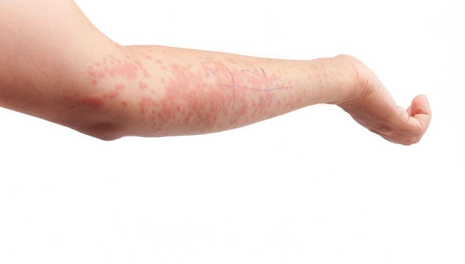 Skin Allergies: पावसाळ्यातील त्वचेच्या अॅलर्जीसाठी घ्या अशी काळजी