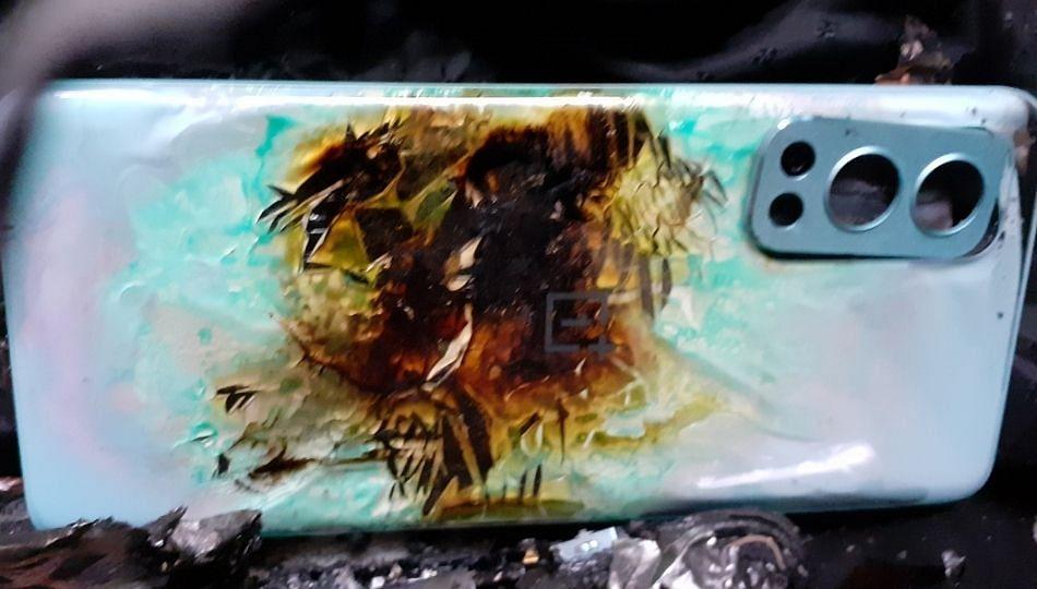 One Plus च्या स्मार्टफोनचा खिशात स्फोट; तरुण जखमी