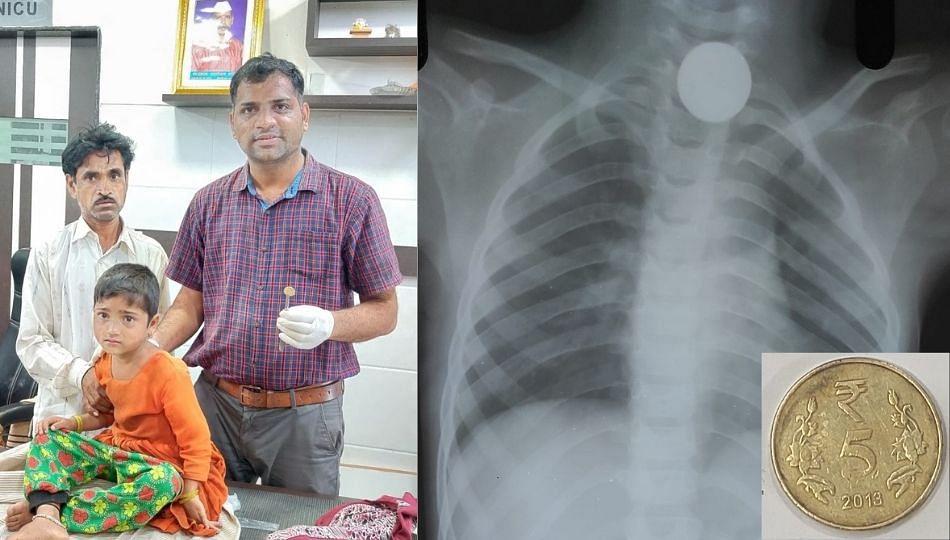 सहा वर्षीय चिमुकलीच्या घशात नाणं अडकलं; डॉक्टरांनी विनाशस्त्रक्रिया काढलं...