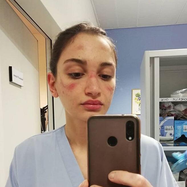 Viral | कोरोना पेशंटवर उपचार करणाऱ्या नर्सच्या चेहऱ्यावर जखम ? फोटो व्हायरल