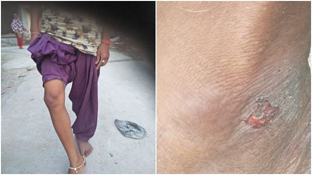 Some pictures of wounds sustained by dalit family, as claimed