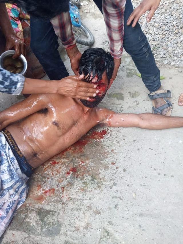 An injured Santosh Ram on 13 May/picture shared by Birendra Ram