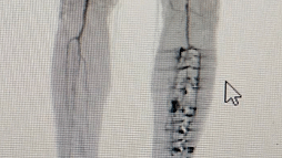 Figure 1: He was evaluated with a peripheral ctaortogram which revealed a completely occluded superficial artery with a two vessel run off infrapopliteally.
