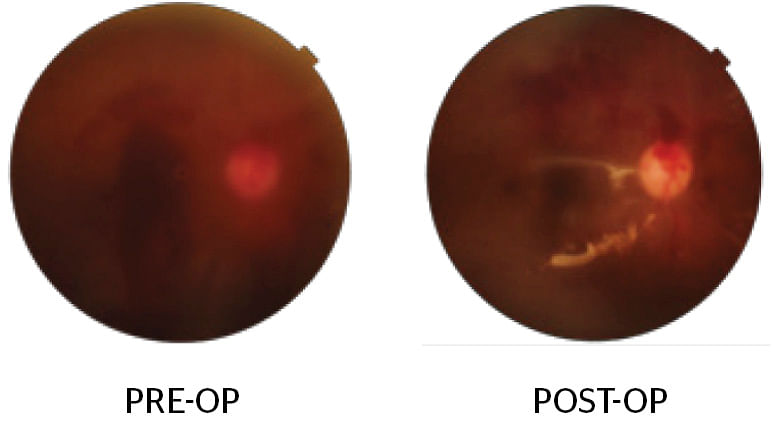 Combined Cataract and Retina surgery: IOL implantation, Vitrectomy and Silicone oil injection