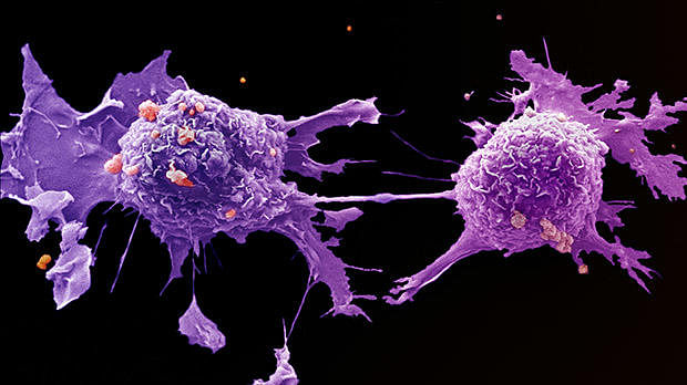 The Growing Burden of Cancer