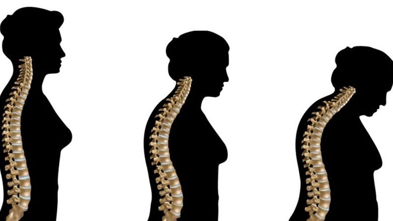 The study found that measures such as grip strength and lean mass are associated with the bone density