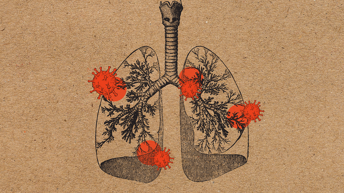 Here's how the virus is affecting your lungs