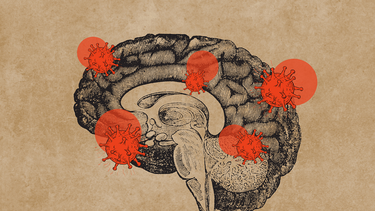 Does the Covid-19 virus affect your brain?