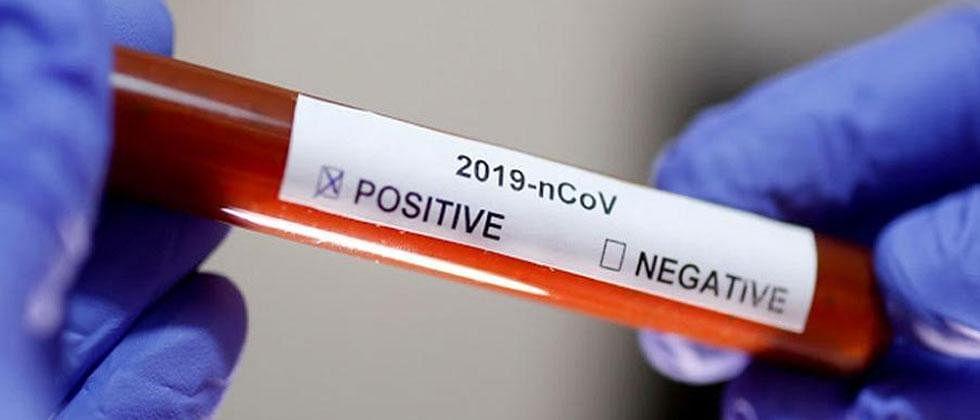 Eradication of novel coronavirus is unlikely: WHO
