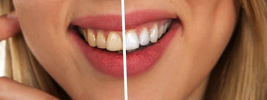 Is It Okay For Teeth To Be Yellow?