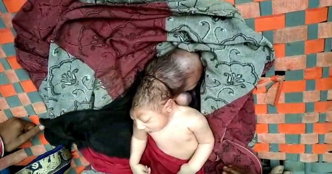 मैनपुरी में तीन सर बाली बच्ची ने लिया जन्म, देखने वालों की जुटी भीड़