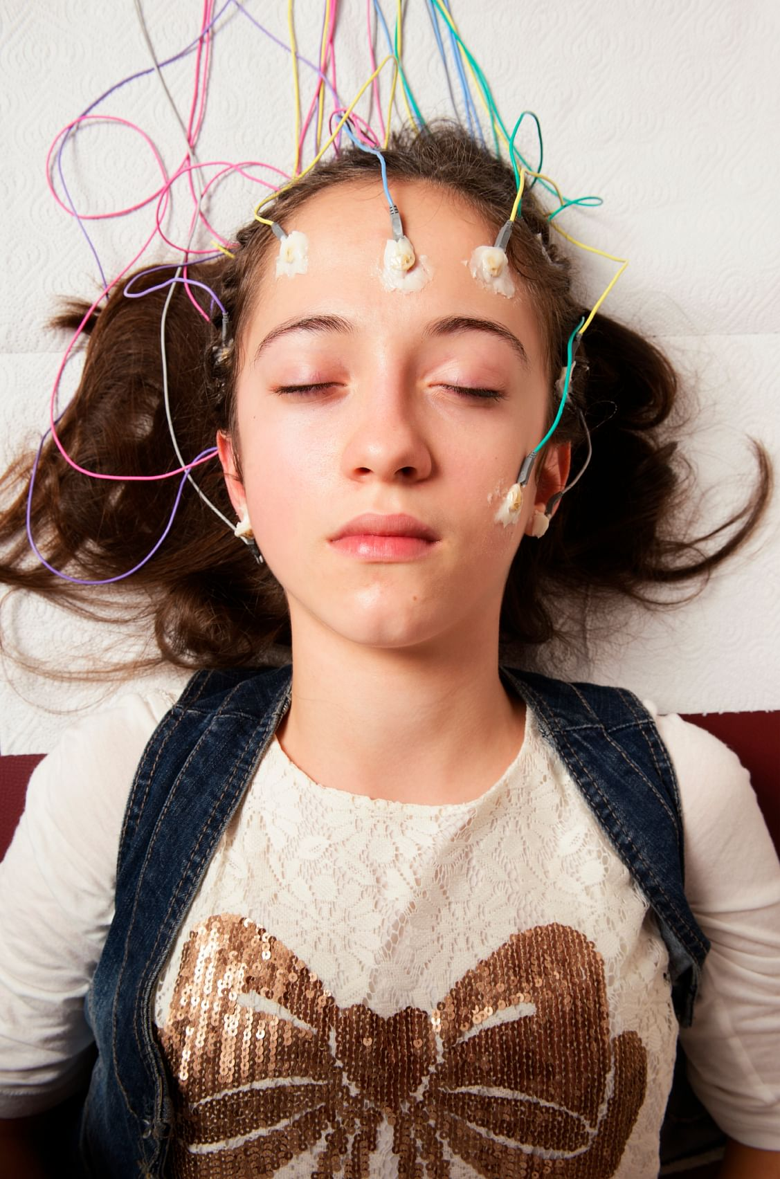 Dravet syndrome can cause mental and physical development delays in kids. Currently there is no cure or standard treatment for it (Photo: iStock)