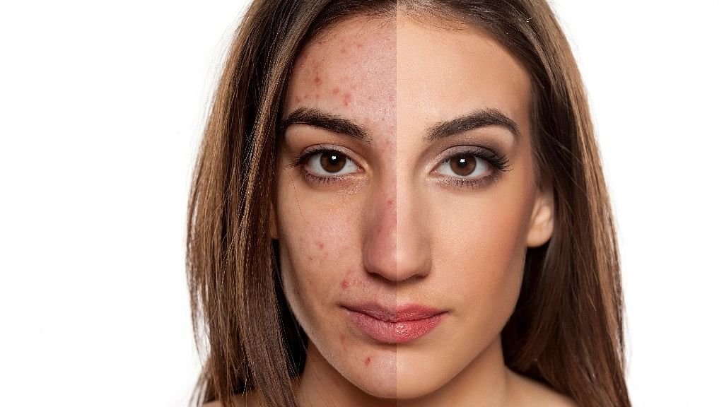 Ayurvedic  Remedies for Acne & Pimples: How much do you think you know about acne?