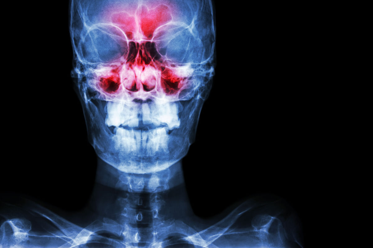 The condition is caused by anything that blocks the sinus openings in the nasal passage.
