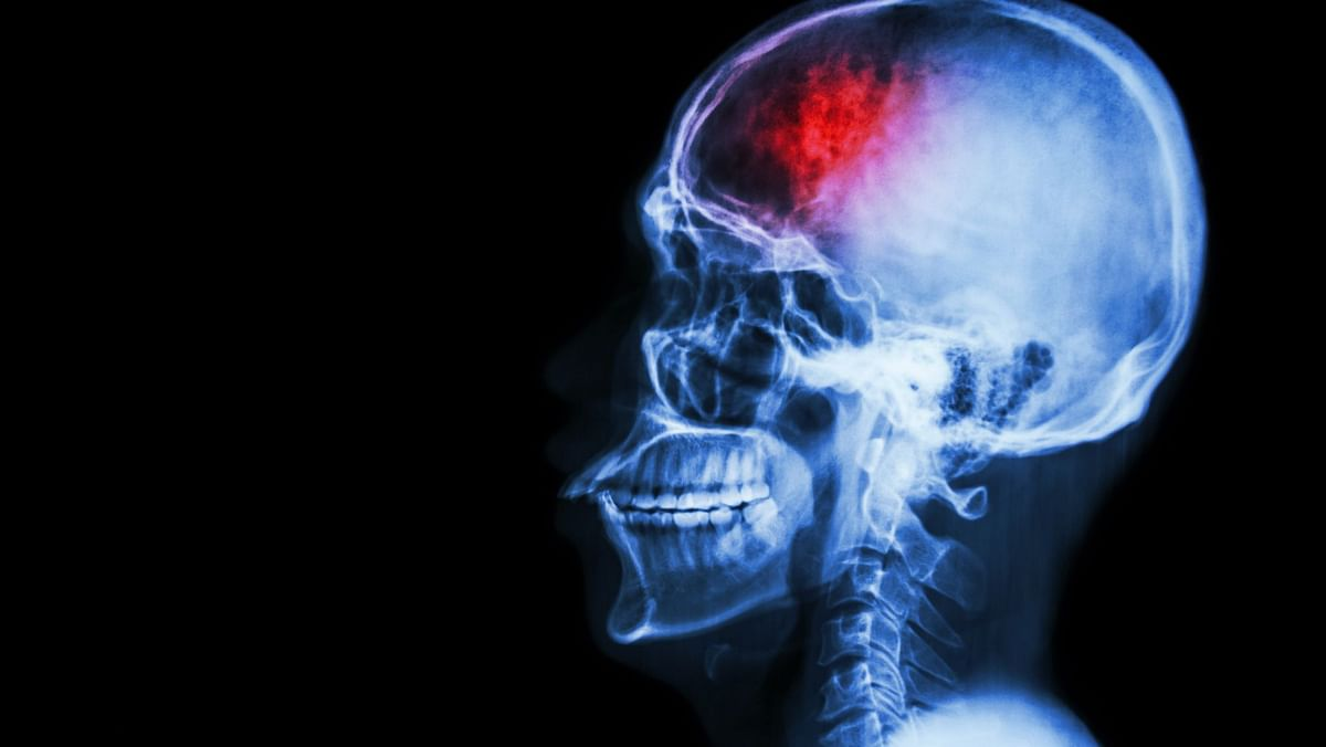 According to the World Stroke Organisation, 1 in 6 people in the world will suffer a stroke in their lifetime.